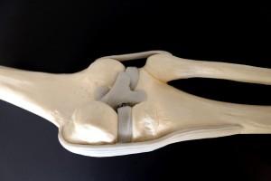 Arthroskopische Chirurgie